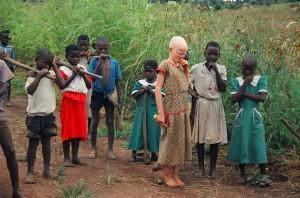 Los niños abandonados o con alguna tara fisica  comoesta niña albina en Malawi son los primeros acusados de brujeria (1)